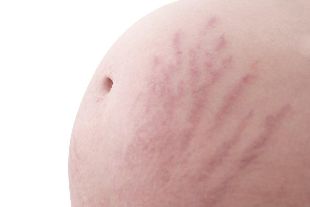 赤ちゃんの肌にもOK! エルバオーガニックスストレッチマーククリームを4ヶ月間使ったらすごく良かった